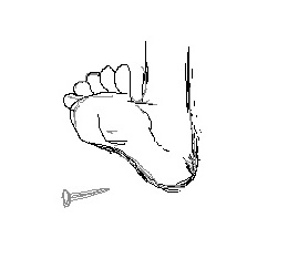 Stepping on nails sketch
